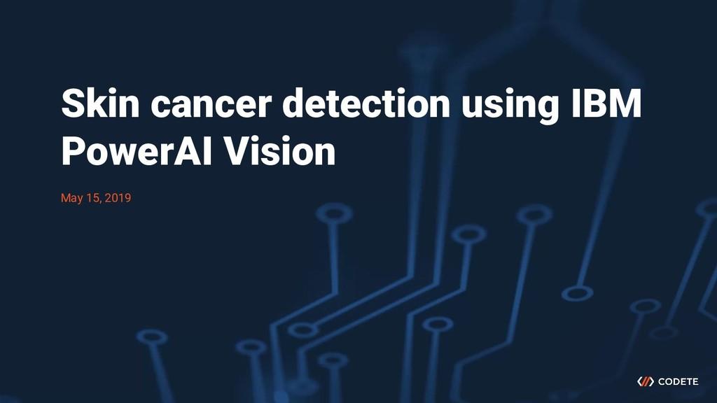 Skin cancer detection using IBM PowerAI Vision ...