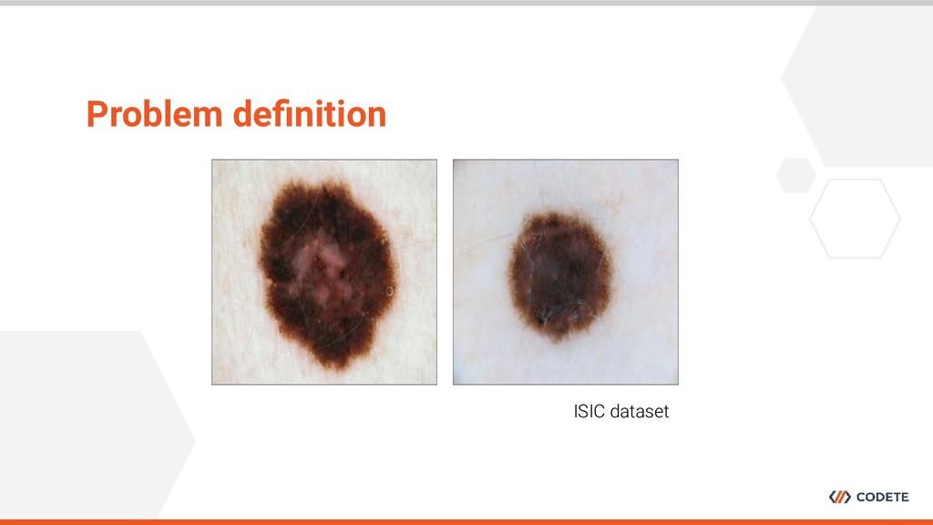 Problem definition ISIC dataset