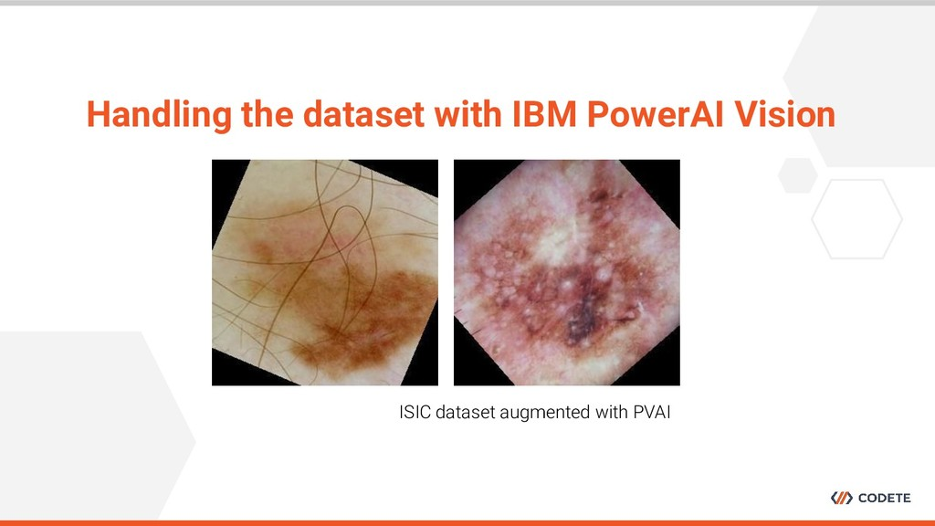Handling the dataset with IBM PowerAI Vision IS...