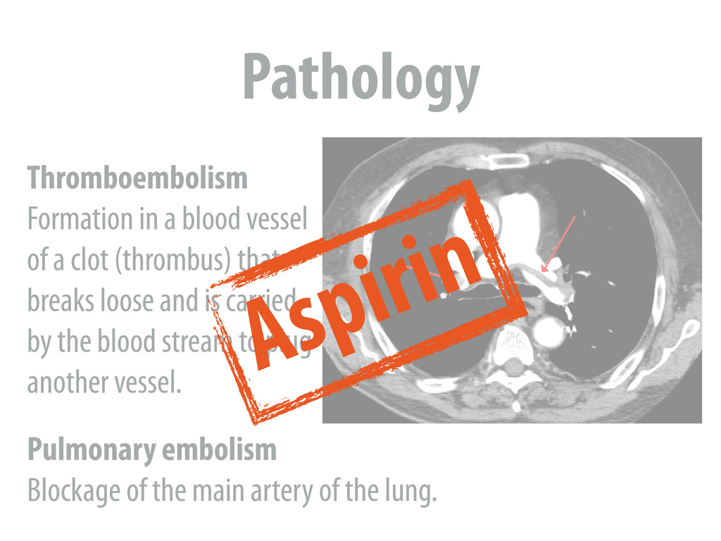 Pathology Thromboembolism Formation in a blood ...
