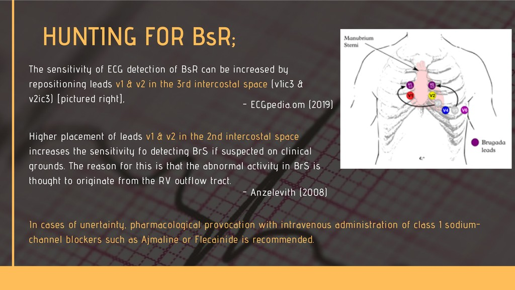 The sensitivity of ECG detection of BsR can be ...
