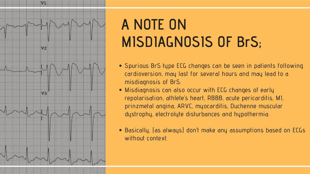 A NOTE ON MISDIAGNOSIS OF BrS; Spurious BrS typ...