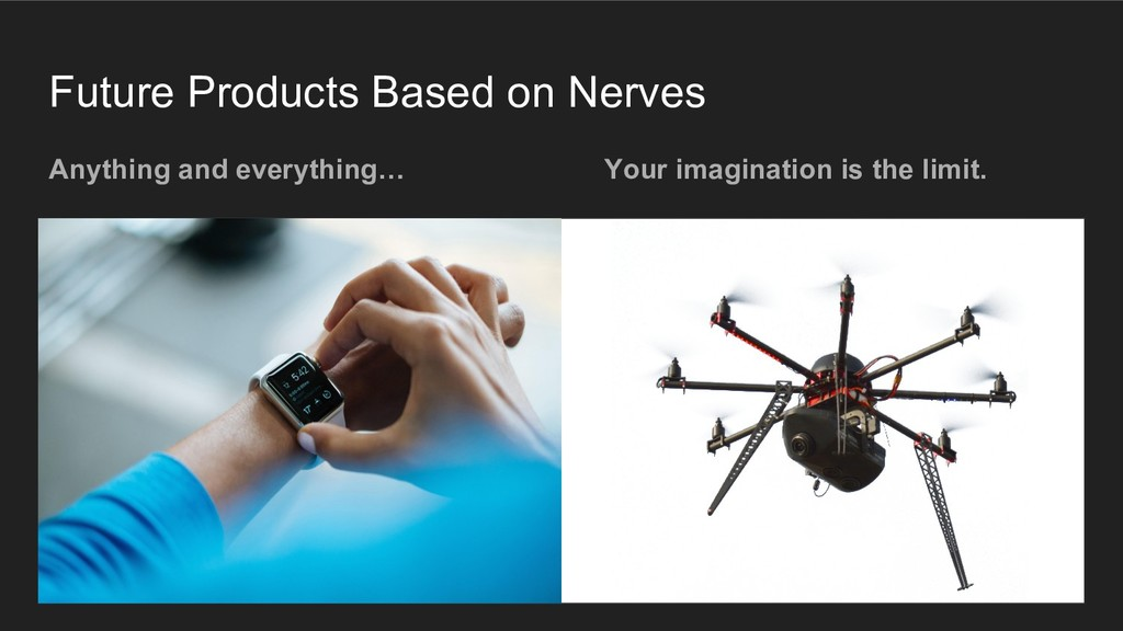Future Products Based on Nerves Anything and ev...
