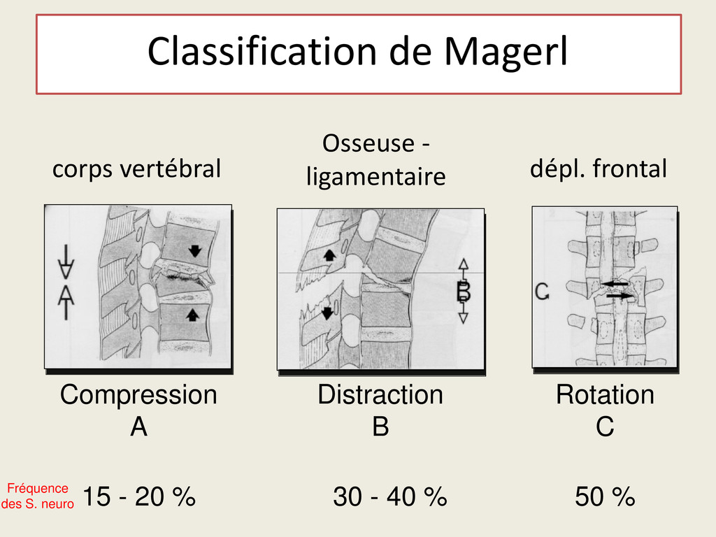 Classification de Magerl Compression A Distract...