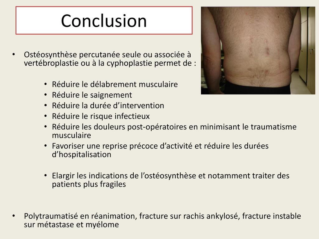 Conclusion • Ostéosynthèse percutanée seule ou ...