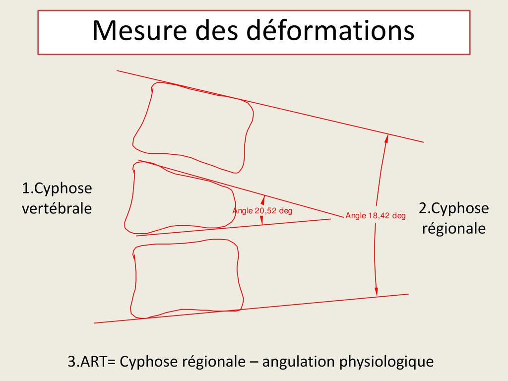 Mesure des déformations Angle 18,42 deg Angle 2...