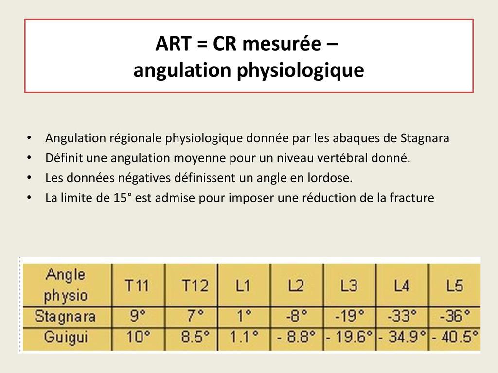 ART = CR mesurée – angulation physiologique • A...