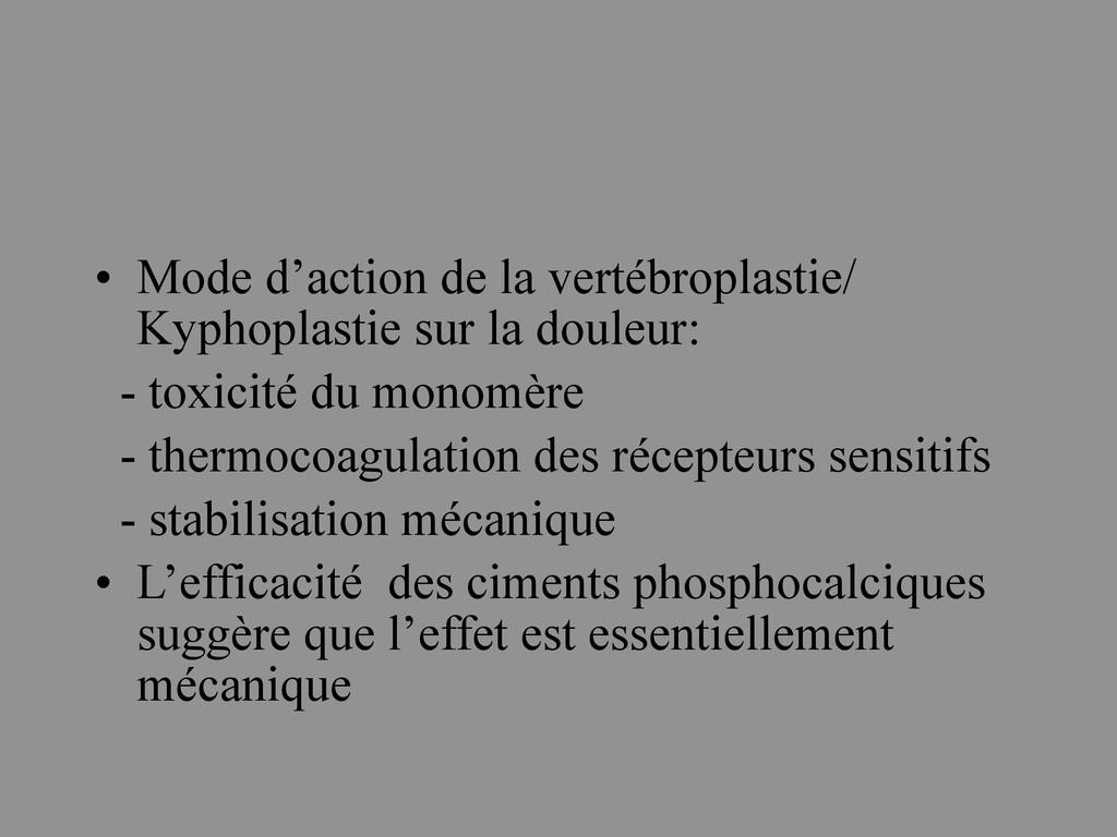 • Mode d'action de la vertébroplastie/ Kyphopla...