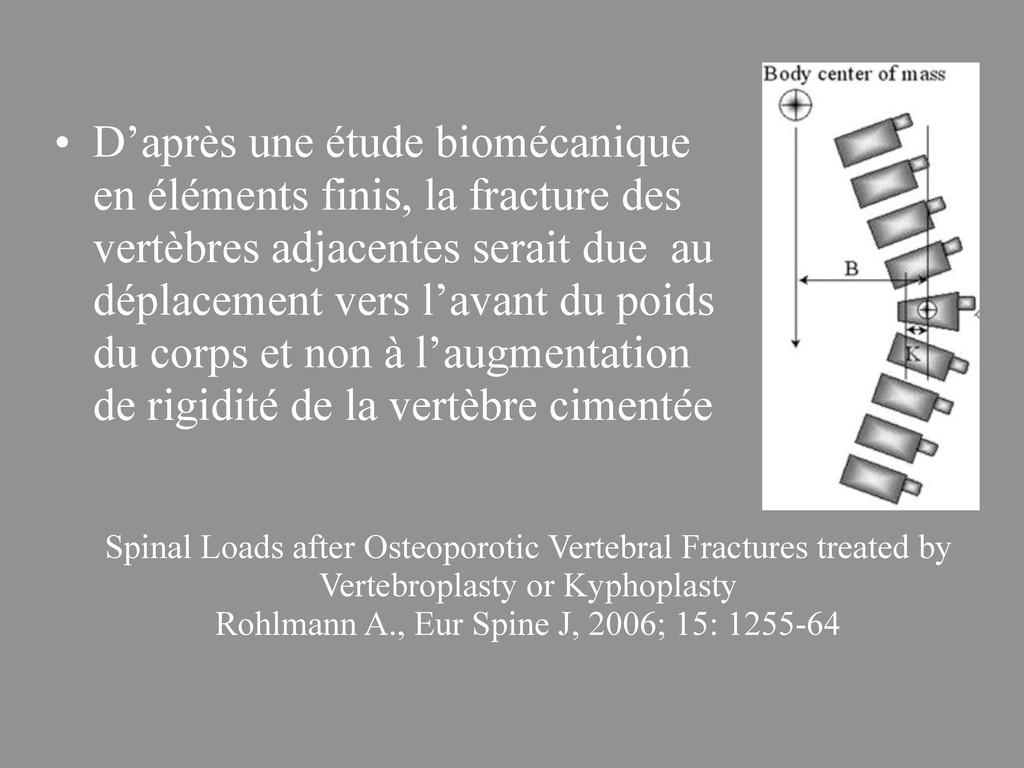Spinal Loads after Osteoporotic Vertebral Fract...