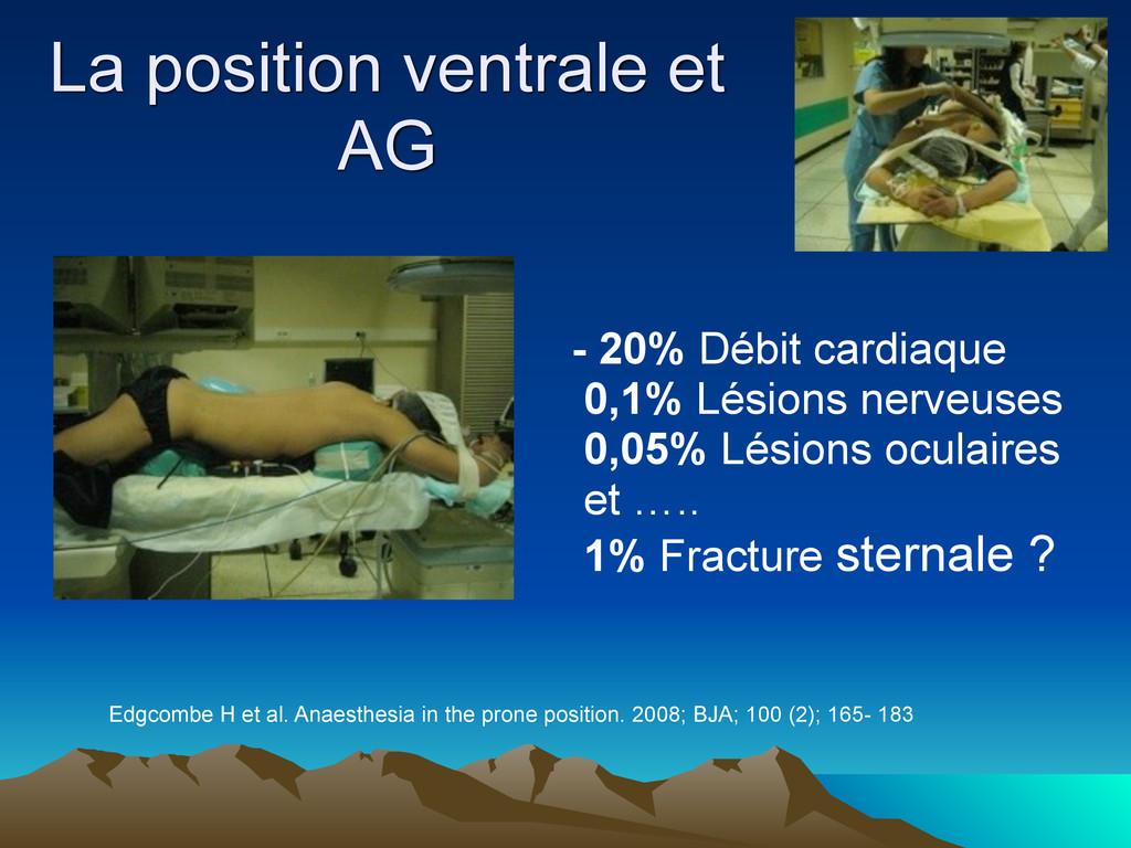 La position ventrale et AG - 20% Débit cardiaqu...