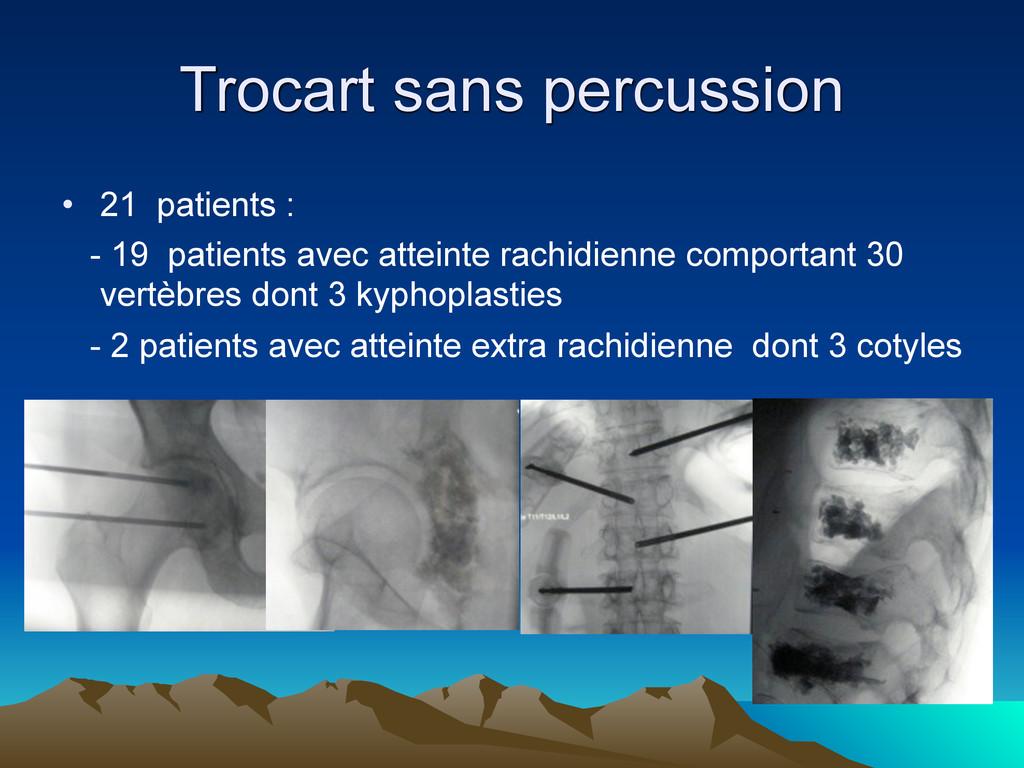 Trocart sans percussion • 21 patients : - 19 pa...
