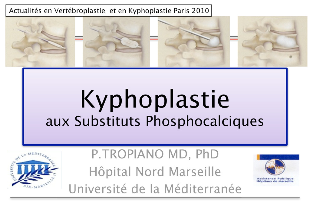 Kyphoplastie aux Substituts Phosphocalciques P....