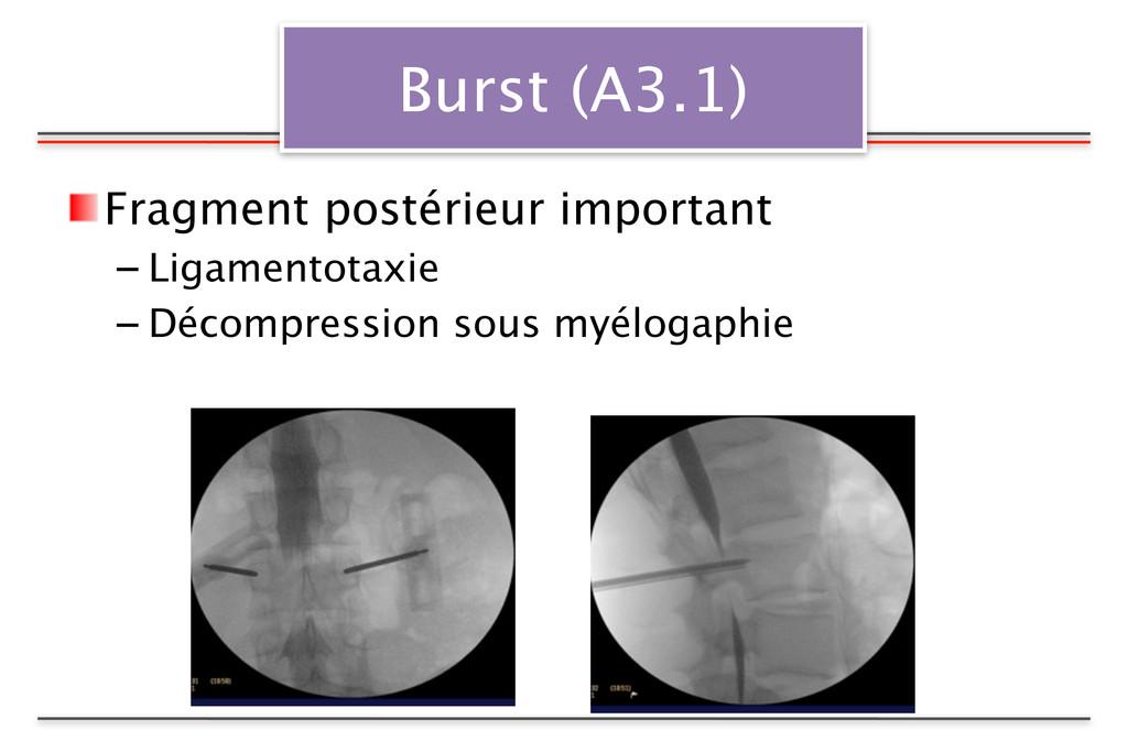 Burst (A3.1) Fragment postérieur important – Li...