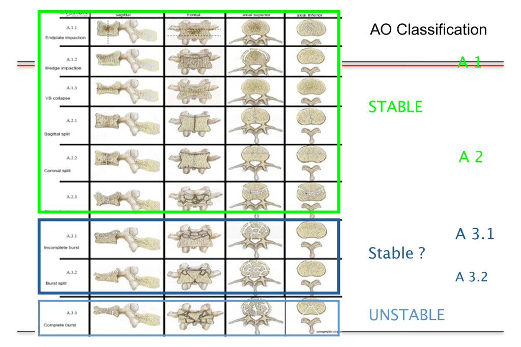 A 1 A 3.1 A 3.2 STABLE A 2 UNSTABLE Stable ? AO...