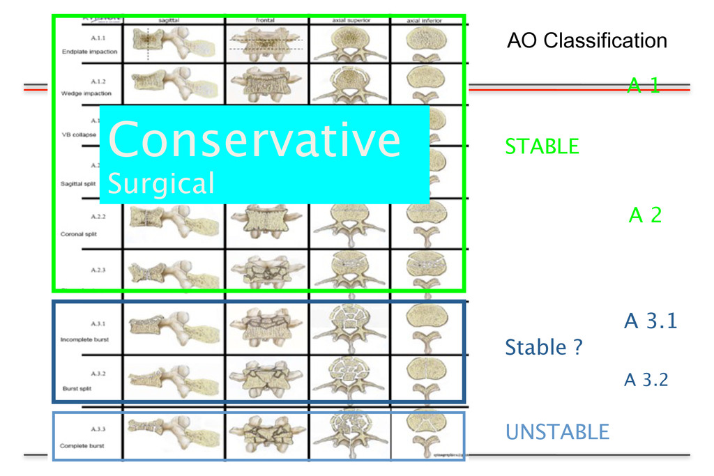 A 1 A 3.1 A 3.2 STABLE A 2 UNSTABLE Stable ? Co...