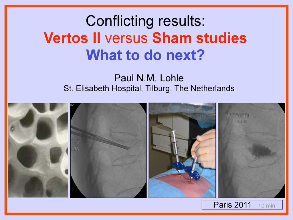 Conflicting results: Vertos II versus Sham stud...
