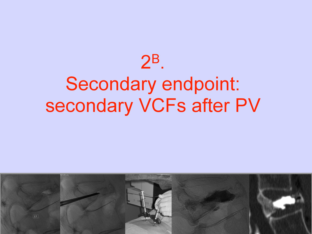 2B. Secondary endpoint: secondary VCFs after PV
