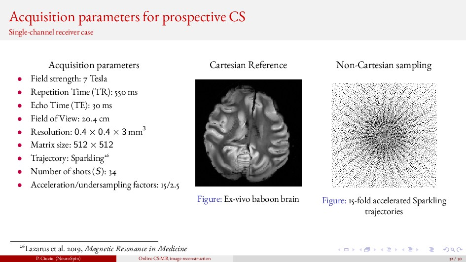 Acquisition parameters for prospective CS Singl...