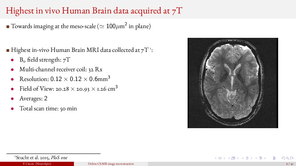 Highest in vivo Human Brain data acquired at 7T...