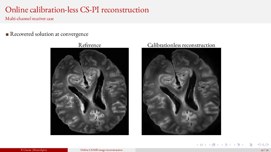 Online calibration-less CS-PI reconstruction Mu...