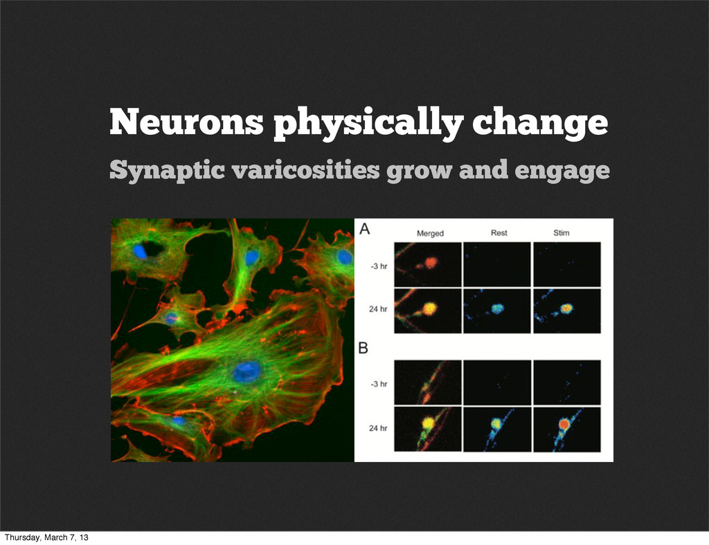 Neurons physically change Synaptic varicosities...
