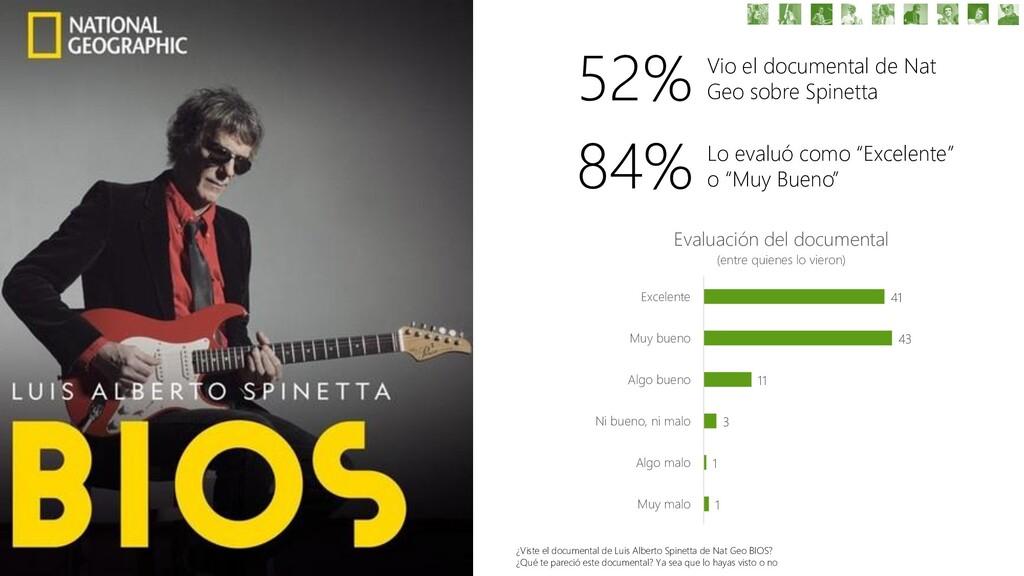 52% Vio el documental de Nat Geo sobre Spinetta...