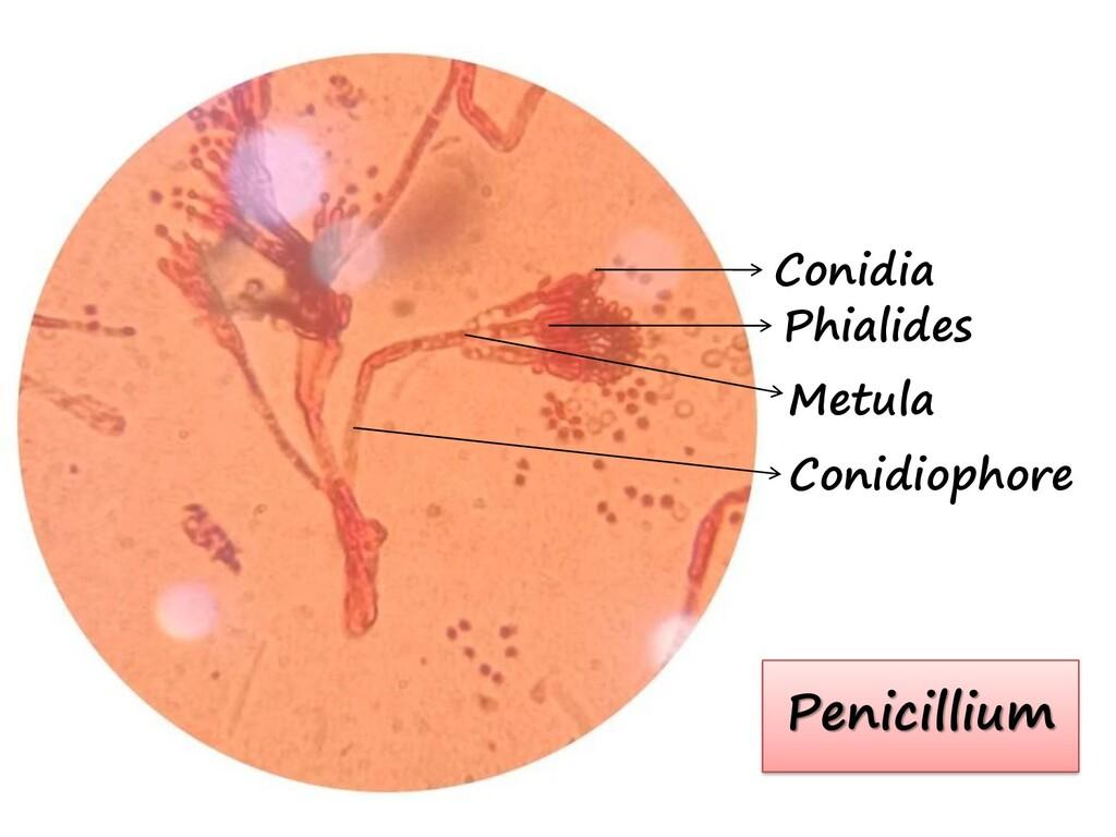 Conidia Phialides Metula Conidiophore Penicilli...
