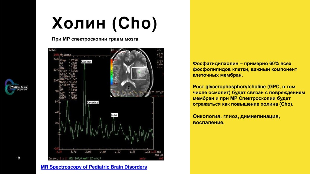 18 Холин (Cho) MR Spectroscopy of Pediatric Bra...
