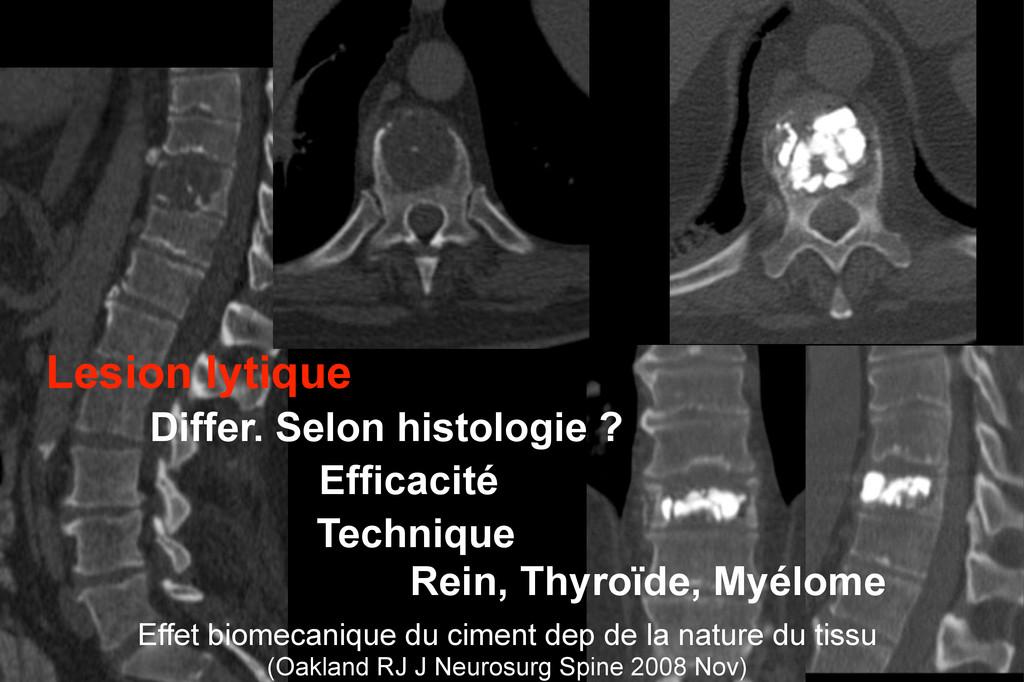 Lesion lytique Differ. Selon histologie ? Effic...