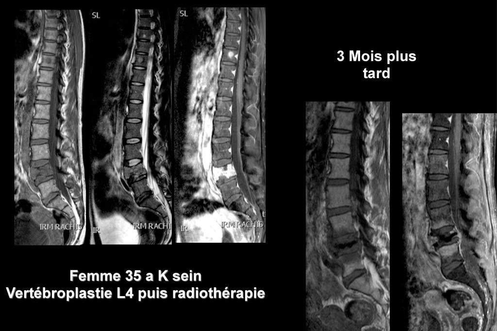 Femme 35 a K sein Vertébroplastie L4 puis radio...