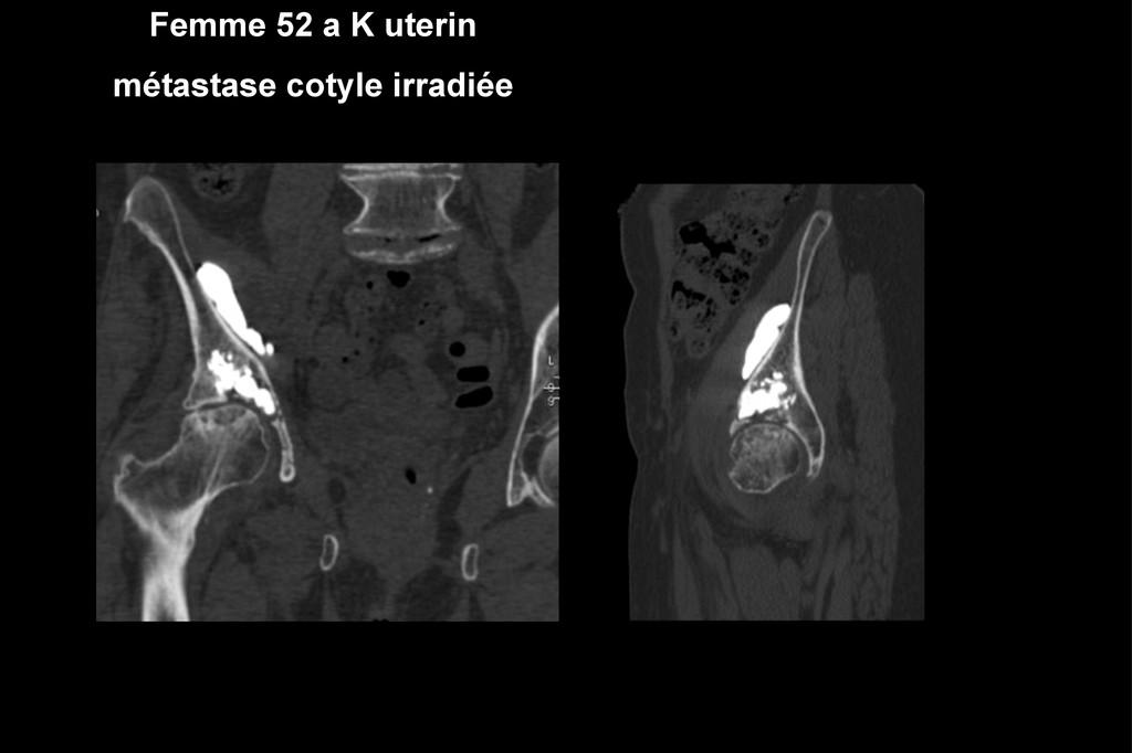 Femme 52 a K uterin métastase cotyle irradiée