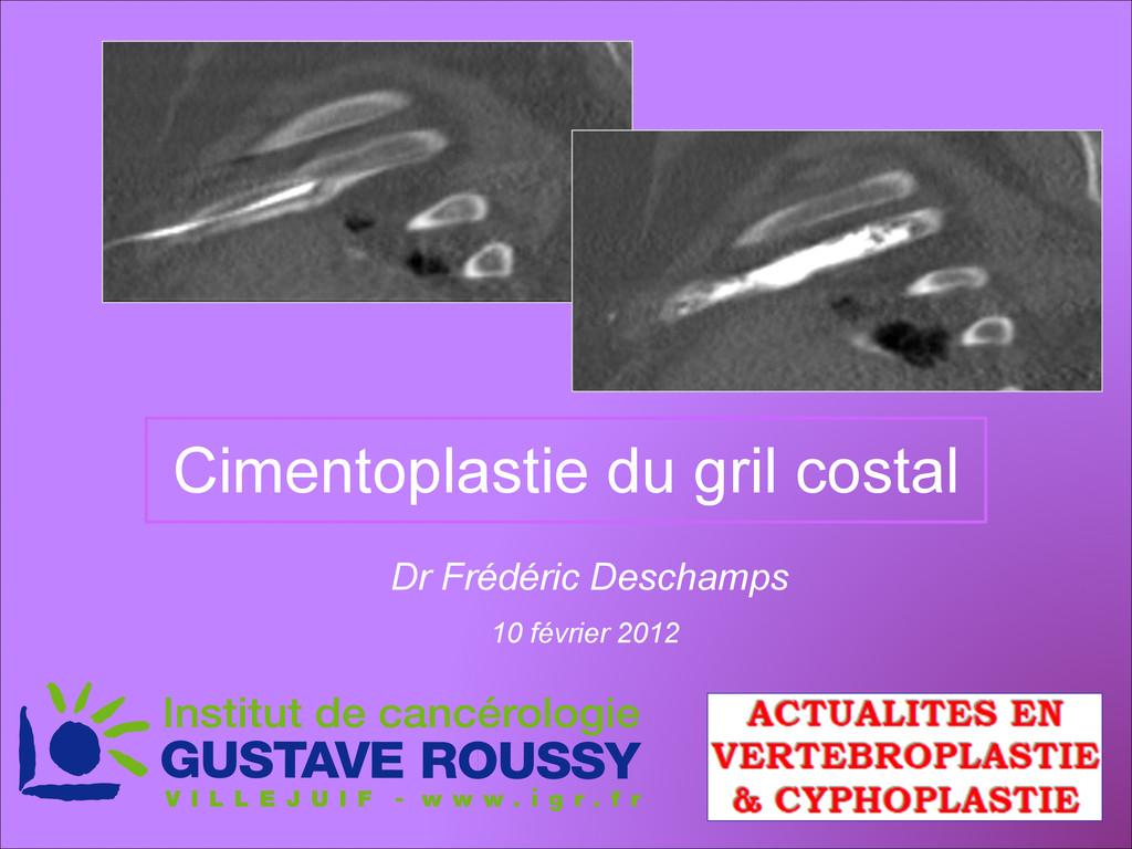 Cimentoplastie du gril costal Dr Frédéric Desch...