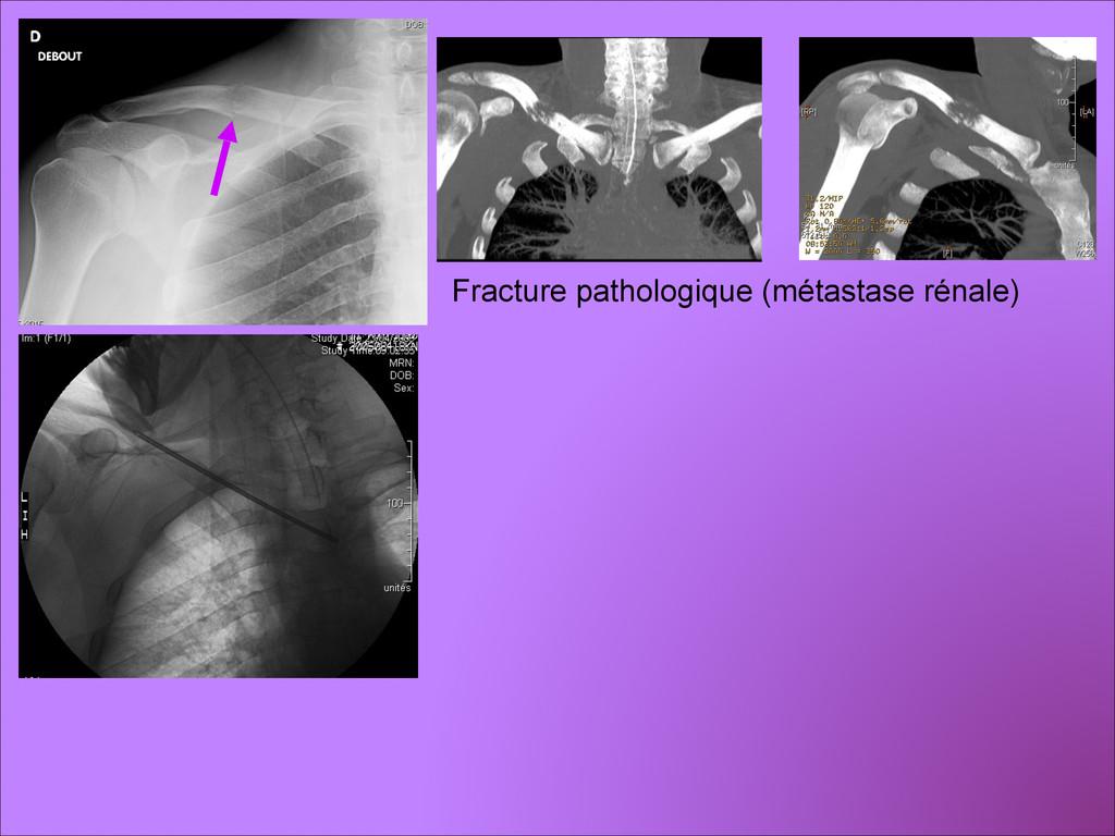 Fracture pathologique (métastase rénale)