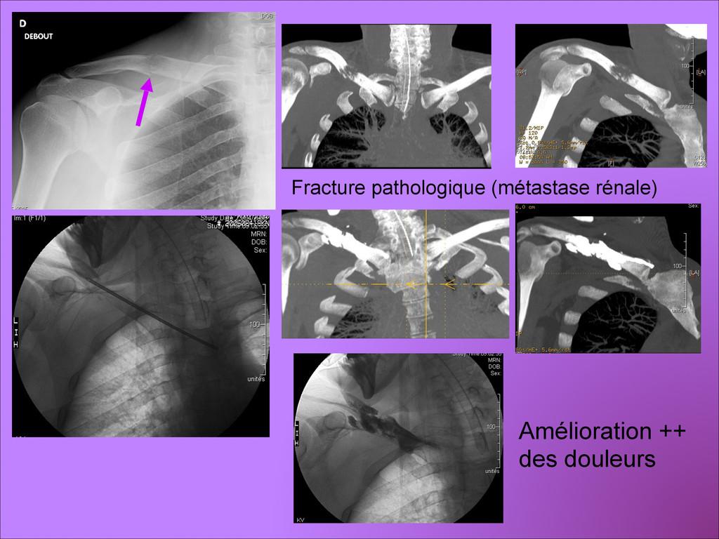 Amélioration ++ des douleurs Fracture pathologi...