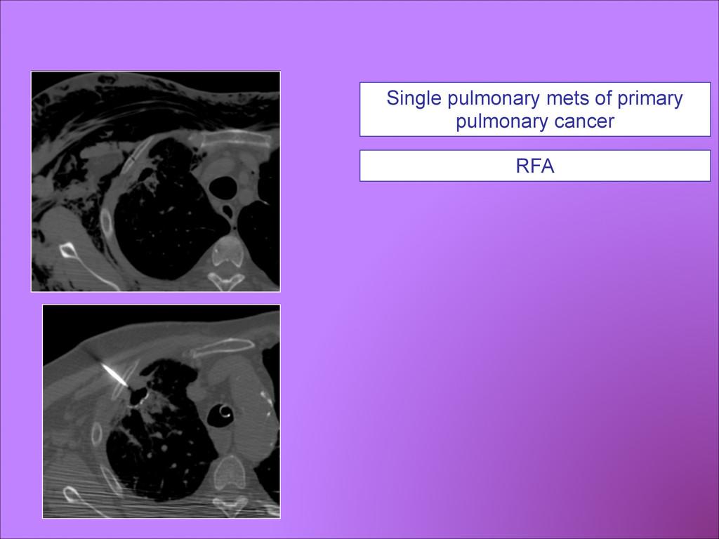 Single pulmonary mets of primary pulmonary canc...
