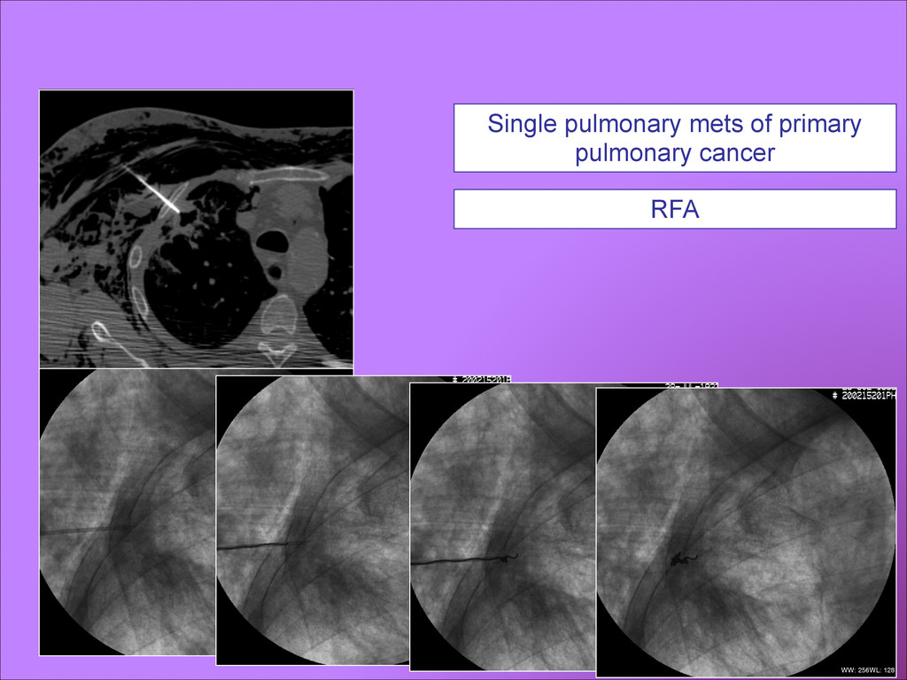 Single pulmonary mets of primary pulmonary canc...