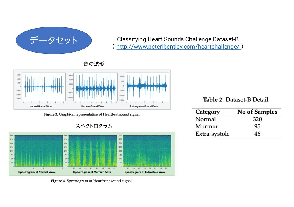 Classifying Heart Sounds Challenge Dataset-B ( ...