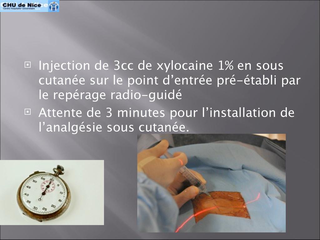  Injection de 3cc de xylocaine 1% en sous cuta...
