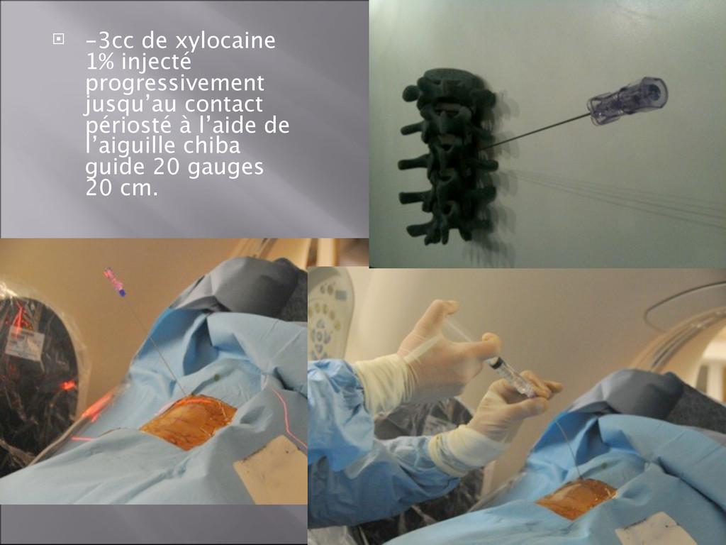  -3cc de xylocaine 1% injecté progressivement ...