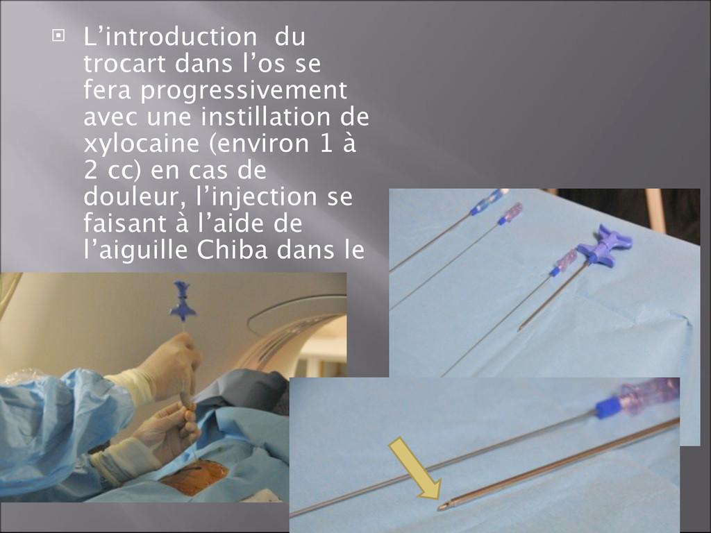  L'introduction du trocart dans l'os se fera p...