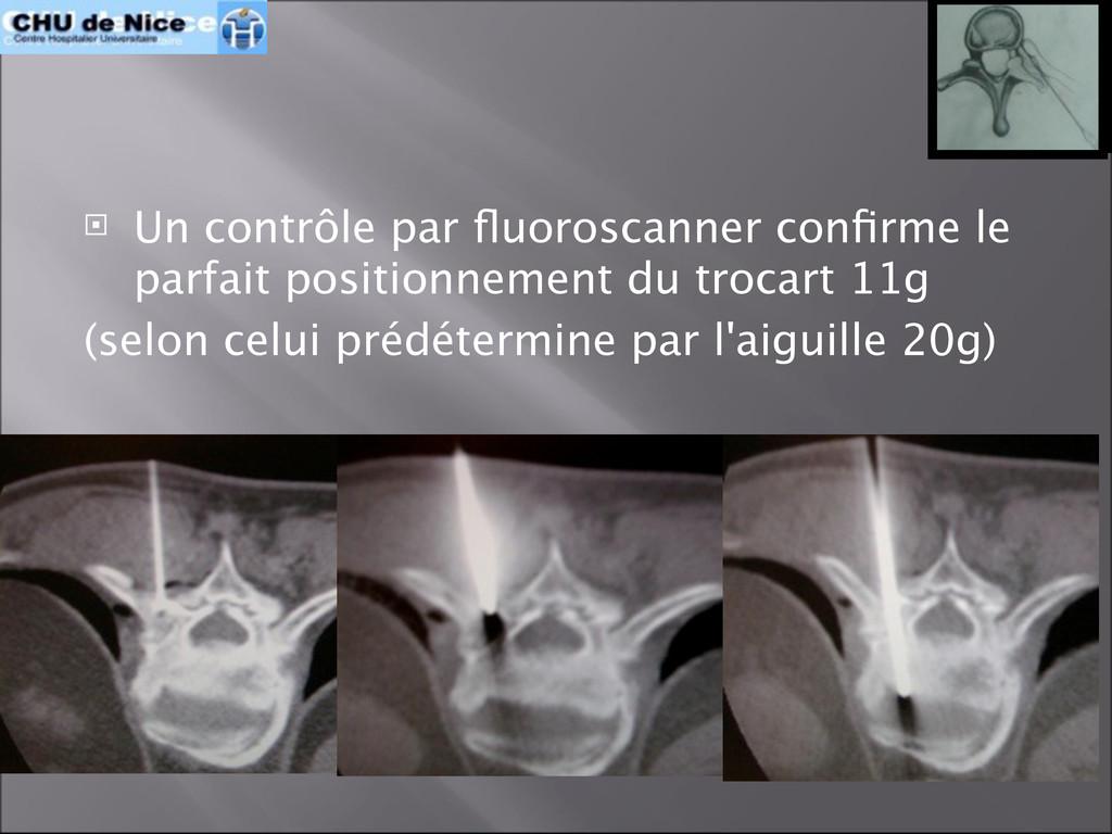  Un contrôle par fluoroscanner confirme le parfa...