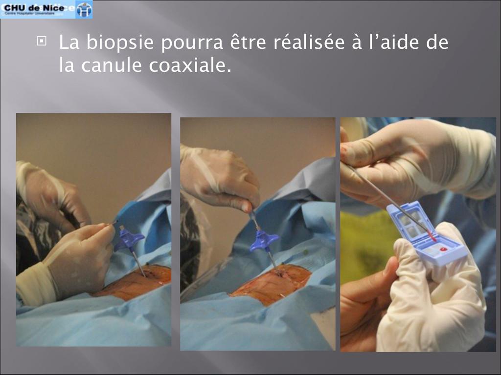 La biopsie pourra être réalisée à l'aide de l...