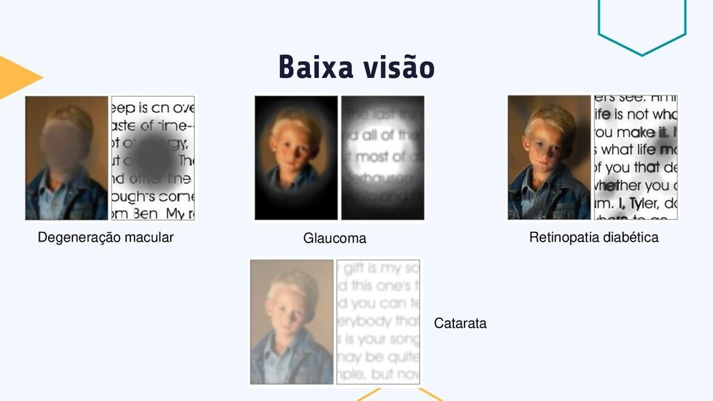Baixa visão Degeneração macular Glaucoma Retino...
