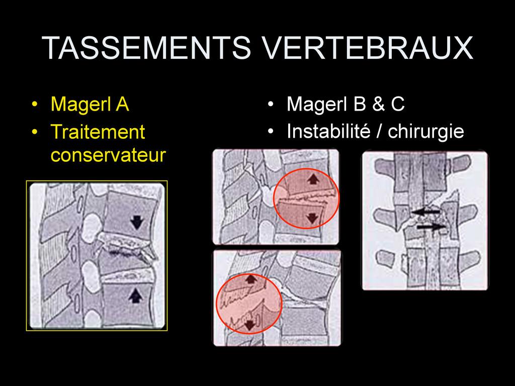 TASSEMENTS VERTEBRAUX • Magerl A • Traitement c...