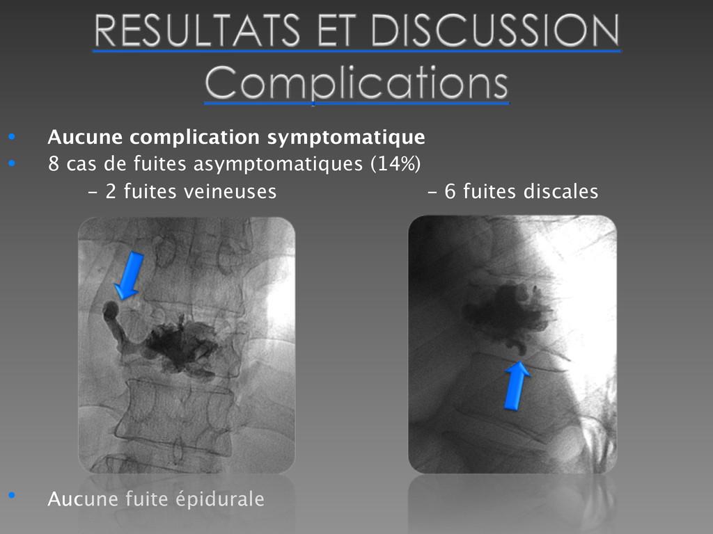 • Aucune complication symptomatique • 8 cas de ...