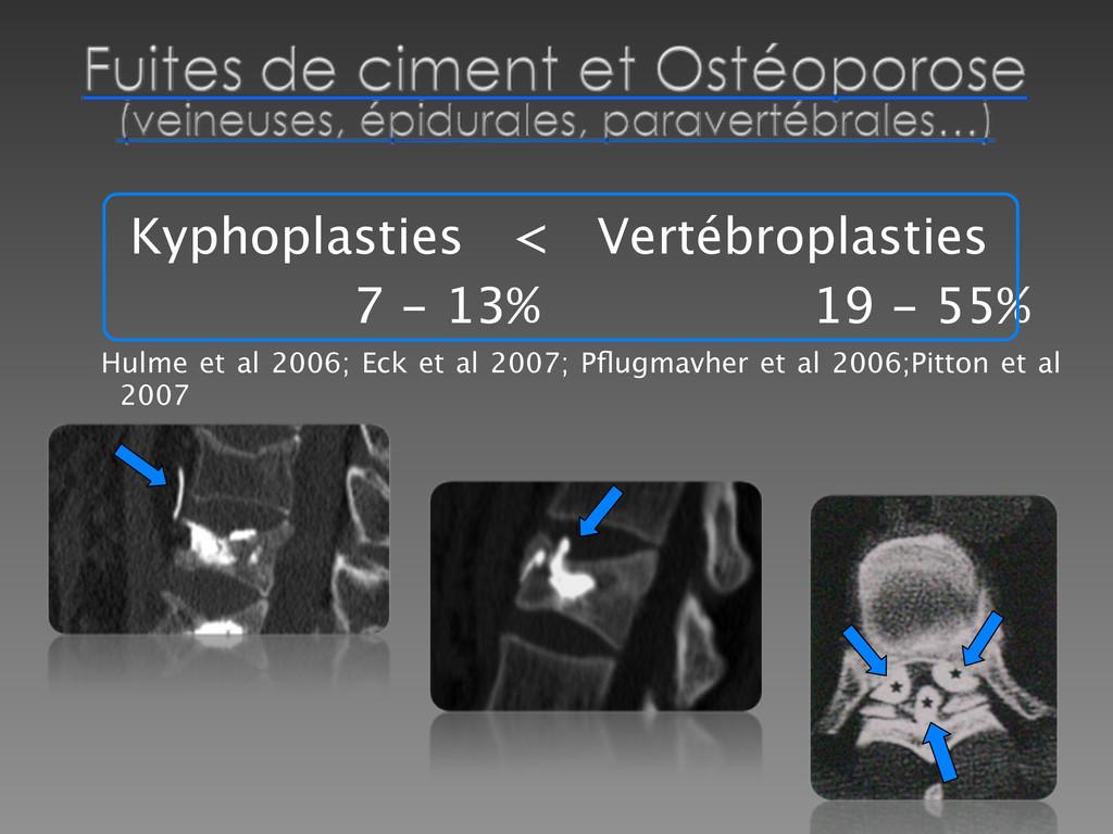 Kyphoplasties < Vertébroplasties   7 - 13%  ...