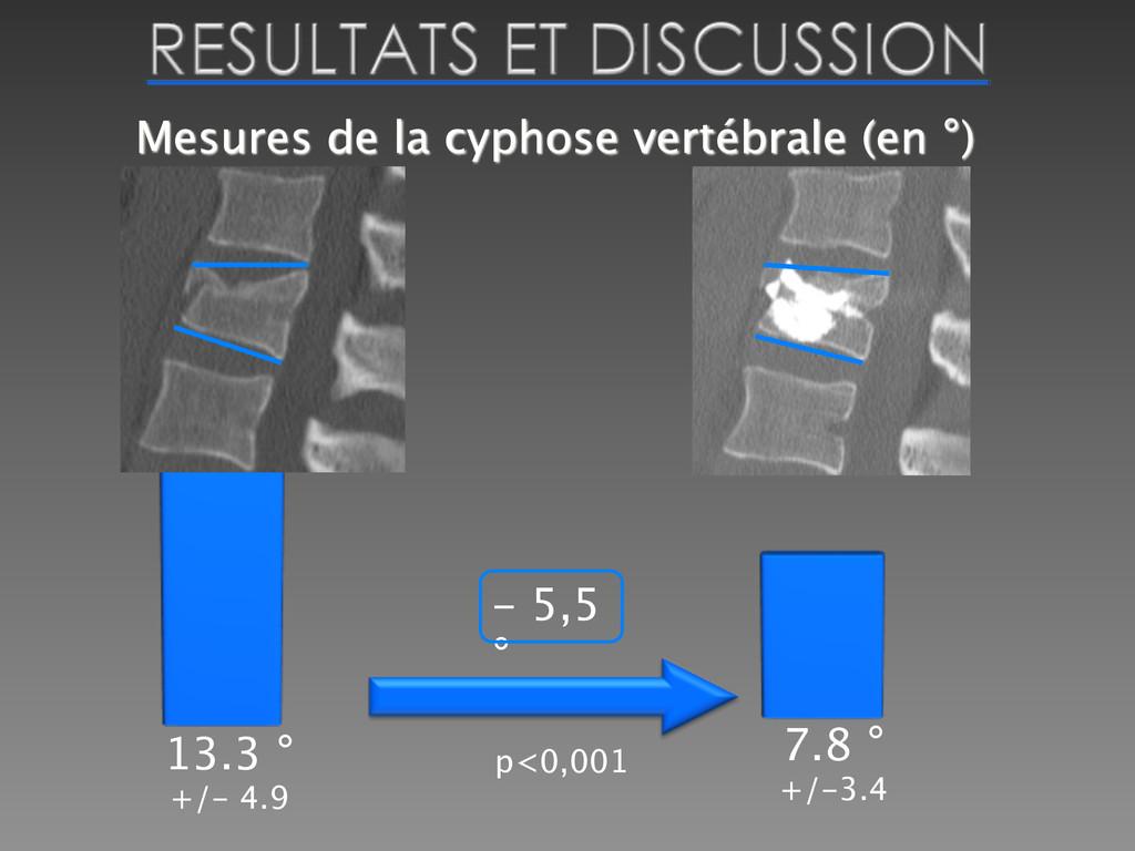 Mesures de la cyphose vertébrale (en °)  13.3 ...