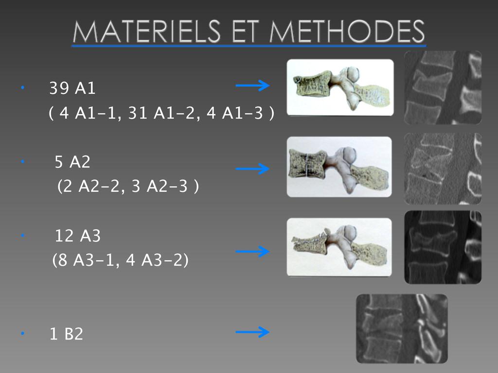 • 39 A1  ( 4 A1-1, 31 A1-2, 4 A1-3 ) • 5 A2 (2...