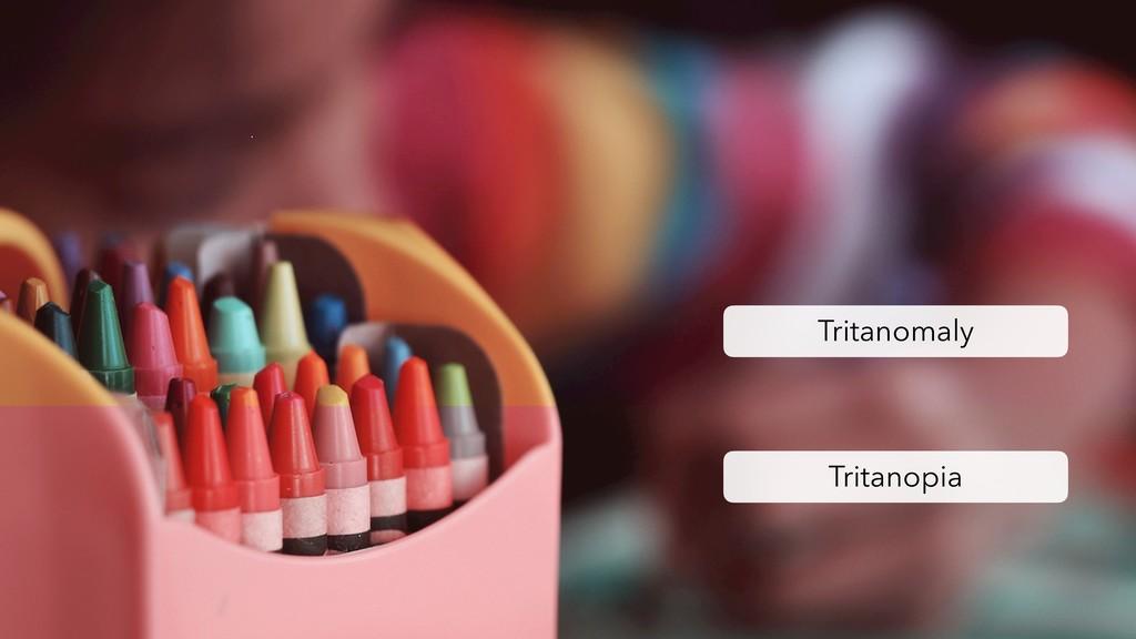 Tritanomaly Tritanopia