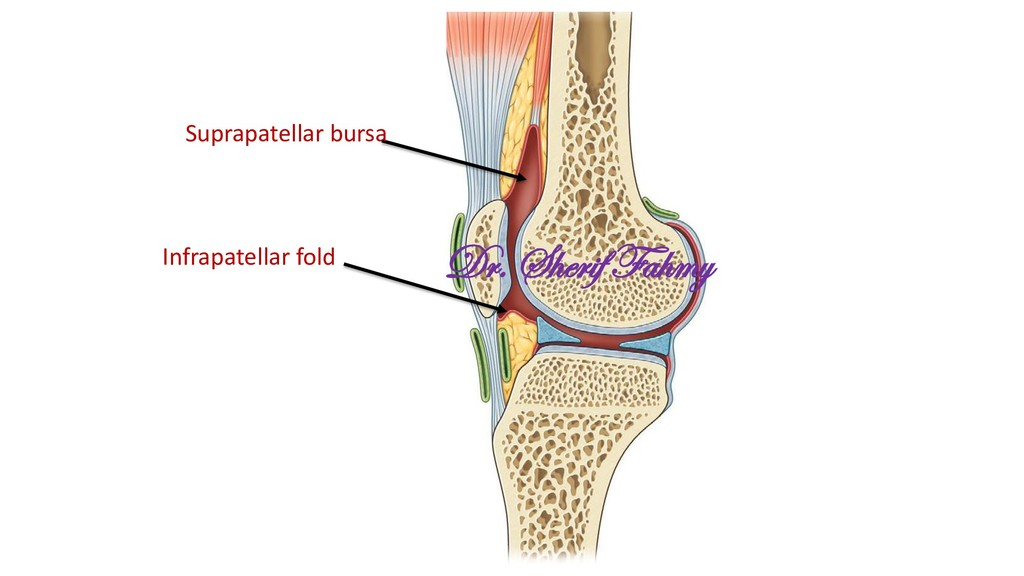 Suprapatellar bursa Infrapatellar fold Dr. Sher...